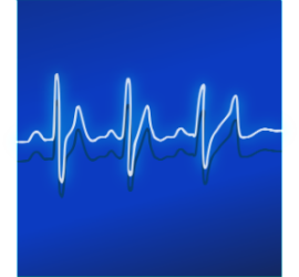 heart monitor-small